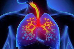 I rimedi del mese per la tosse